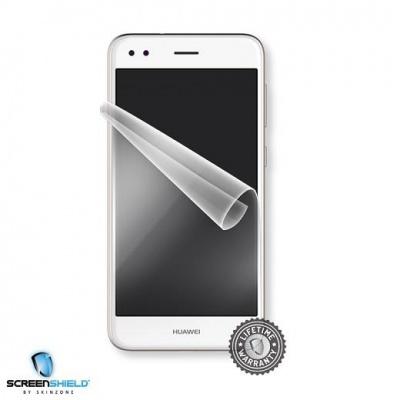 ScreenShield fólie na displej pro Huawei P9 Lite Mini
