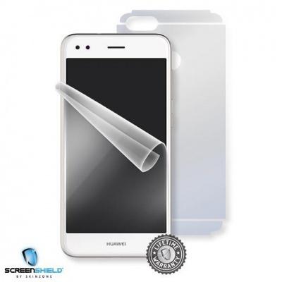 ScreenShield fólie na celé tělo pro Huawei P9 Lite Mini